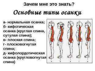 а- нормальная осанка; б- кифотическая осанка (круглая спина, сутулая спина);