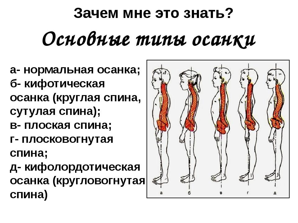 а- нормальная осанка; б- кифотическая осанка (круглая спина, сутулая спина);...