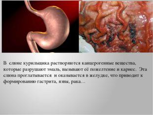 В слюне курильщика растворяются канцерогенные вещества, которые разрушают эма
