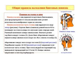 Общие правила наложения бинтовых повязок Повязки на голову и шею Повязка на ш