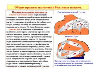 Общие правила наложения бинтовых повязок Повязки на верхние конечности Повязк