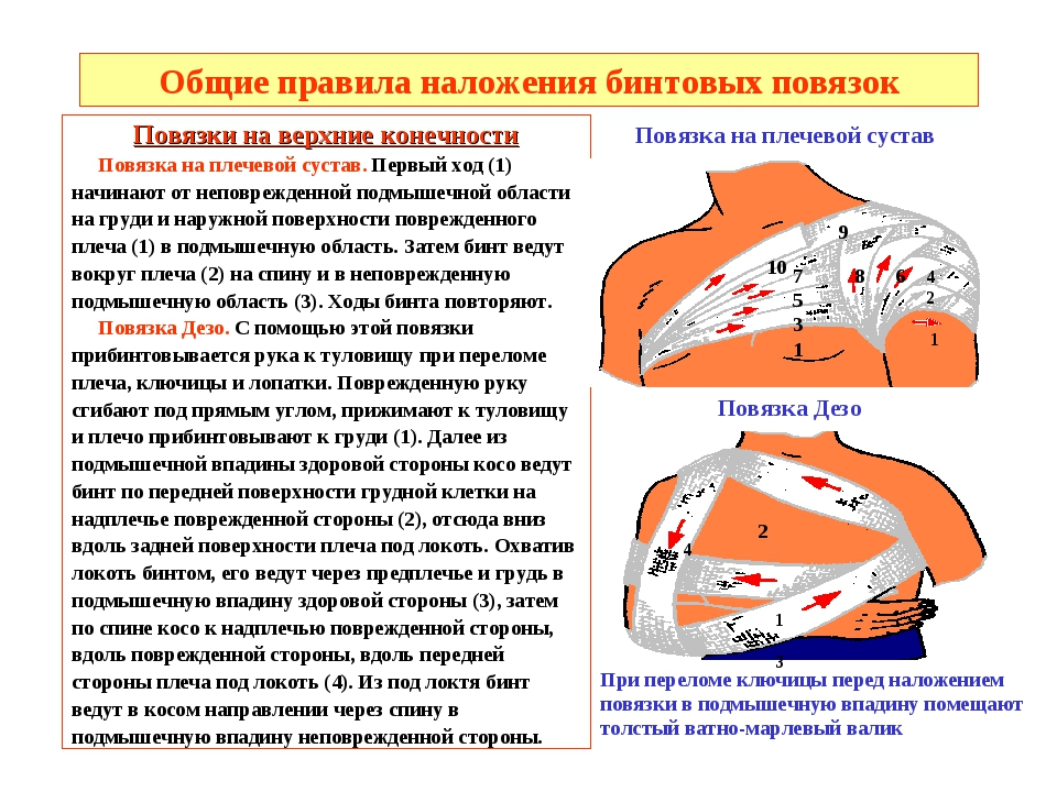 Общие правила наложения бинтовых повязок Повязки на верхние конечности Повязк...