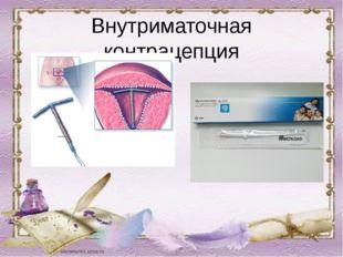 Внутриматочная контрацепция