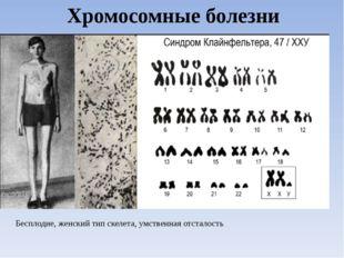 Хромосомные болезни Бесплодие, женский тип скелета, умственная отсталость