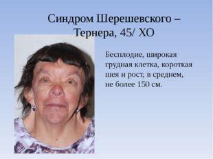 Синдром Шерешевского – Тернера, 45/ ХО Бесплодие, широкая грудная клетка, кор