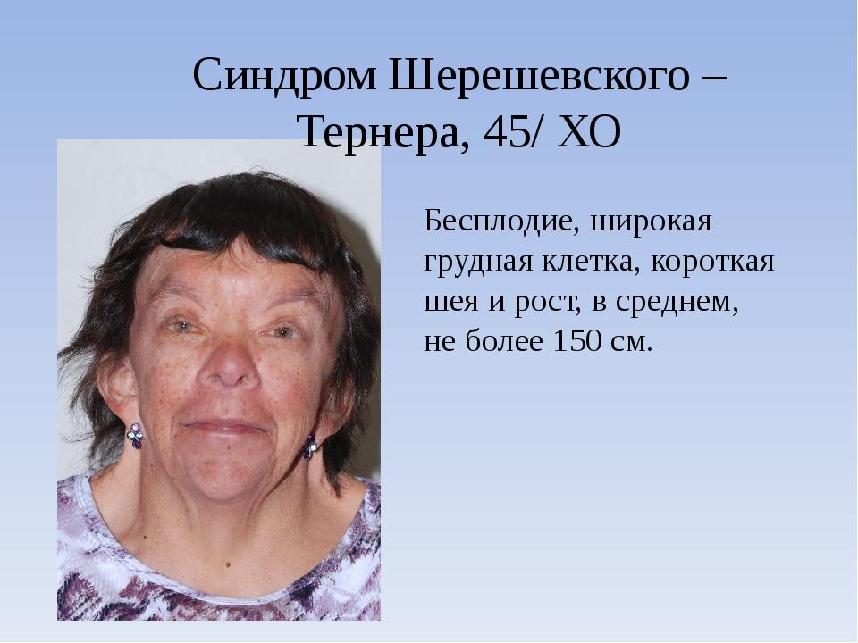 Синдром Шерешевского – Тернера, 45/ ХО Бесплодие, широкая грудная клетка, кор...