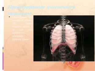 Предстартовое изменения в организме Потребление О2, основной обмен, ЛВ перед