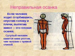 Неправильная осанка Если человек ходит сгорбившись, опустив голову и плечи, в