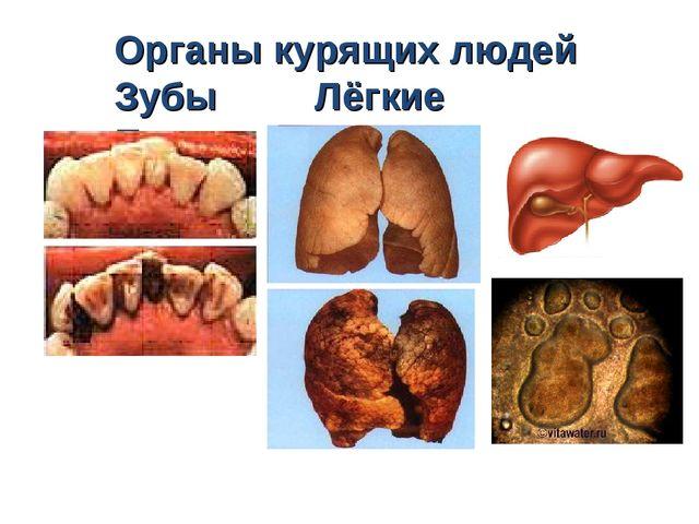 Органы курящих людей Зубы Лёгкие Печень