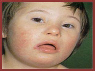 Синдром Дауна: умственная и физическая отсталость, стопы и кисти короткие и