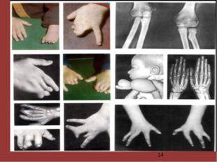Отклонения в развитии опорно-двигательной системы, в частности кисти рук