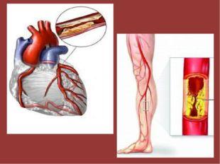 У курильщиков в 2 - 3 раза чаще бывают сердечно-сосудистые заболевания, в 13