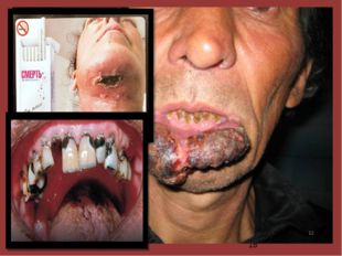Курение является основной причиной возникновения злокачественных новообразов