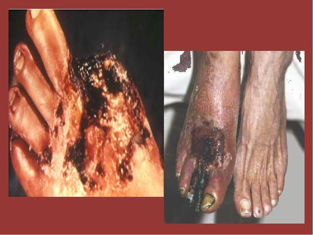 Сильно страдают артерии ног, происходит спазм сосудов из-за недостатка кислор...