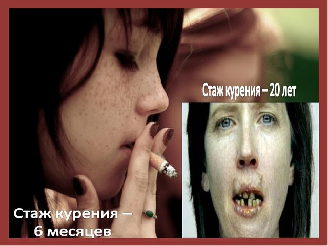 Курение и школьник несовместимы. Школьные годы - это годы роста как физическ...