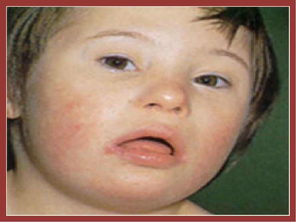Синдром Дауна: умственная и физическая отсталость, стопы и кисти короткие и...