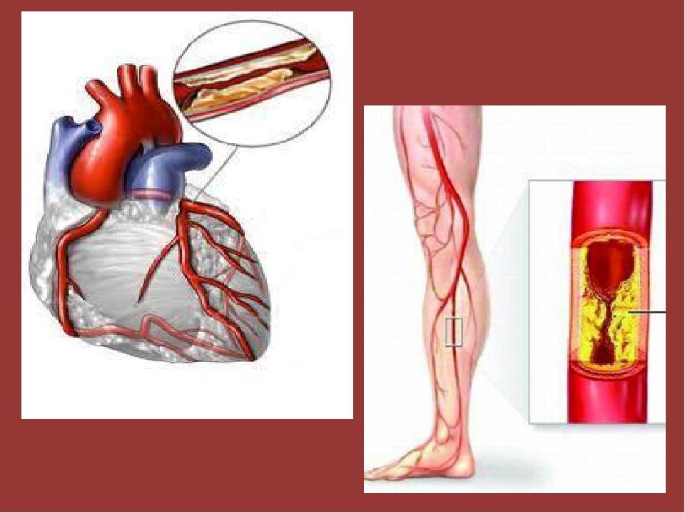 У курильщиков в 2 - 3 раза чаще бывают сердечно-сосудистые заболевания, в 13...