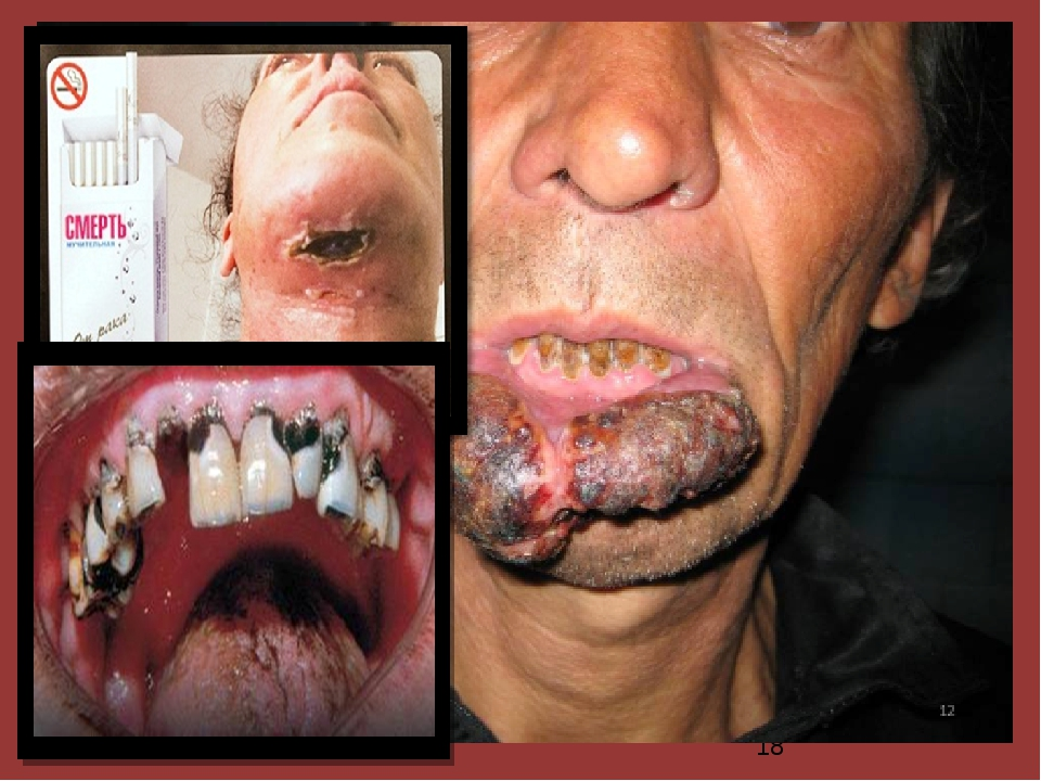 Курение является основной причиной возникновения злокачественных новообразов...