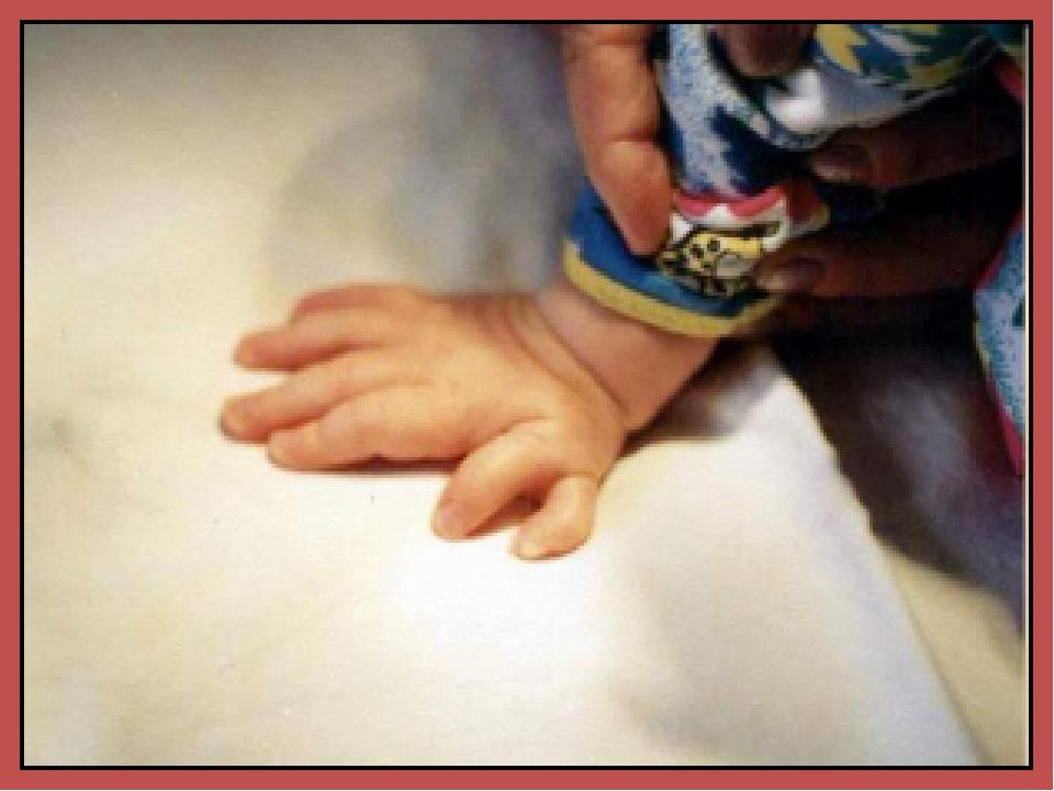 Полидактилия – количество пальчиков больше 5, может быть как на руках так и...