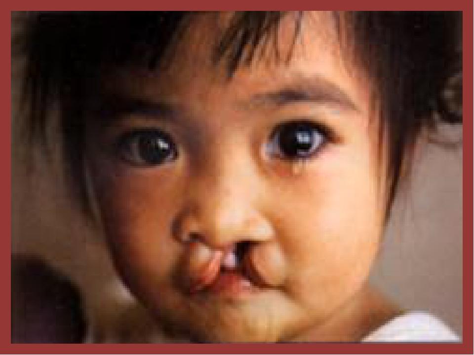 Заячья губа – расщелина верхней челюсти