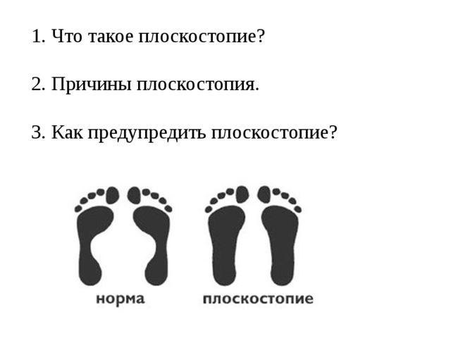1. Что такое плоскостопие? 2. Причины плоскостопия. 3. Как предупредить плоск...