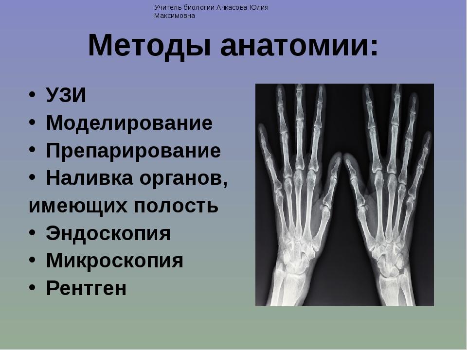 Методы анатомии: УЗИ Моделирование Препарирование Наливка органов, имеющих по...
