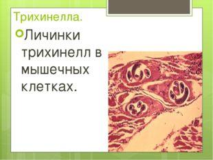 Трихинелла. Личинки трихинелл в мышечных клетках.
