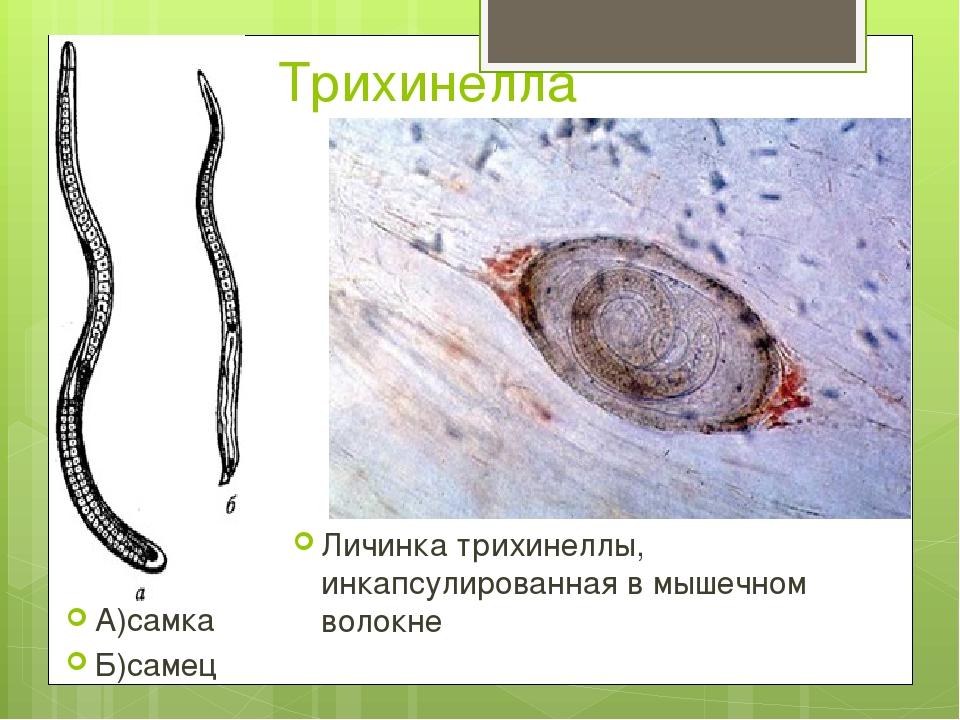 Трихинелла А)самка Б)самец Личинка трихинеллы, инкапсулированная в мышечном в...