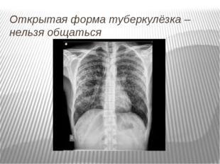 Открытая форма туберкулёзка – нельзя общаться