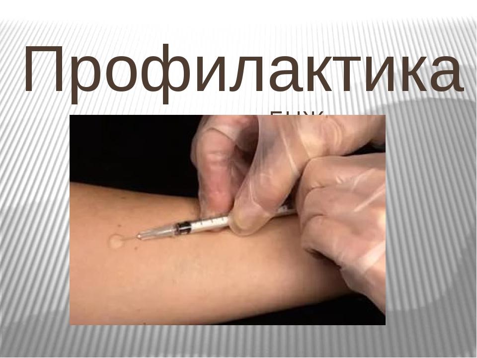 Профилактика прививка БЦЖ