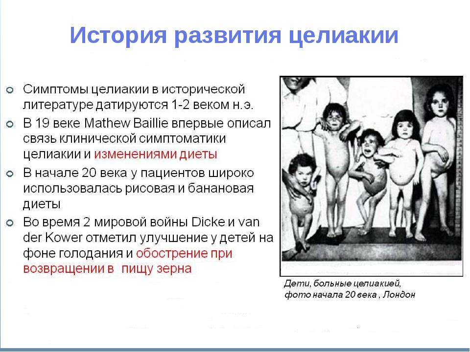 История развития целиакии