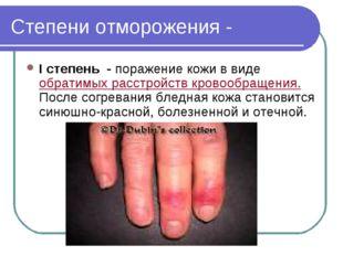 Степени отморожения - I степень - поражение кожи в виде обратимых расстройств