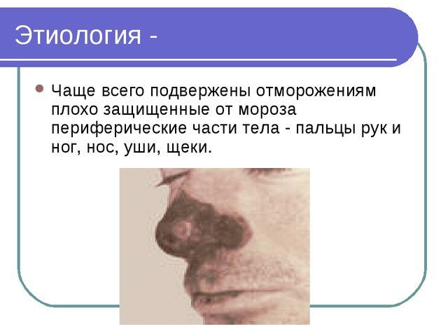 Этиология - Чаще всего подвержены отморожениям плохо защищенные от мороза пер...