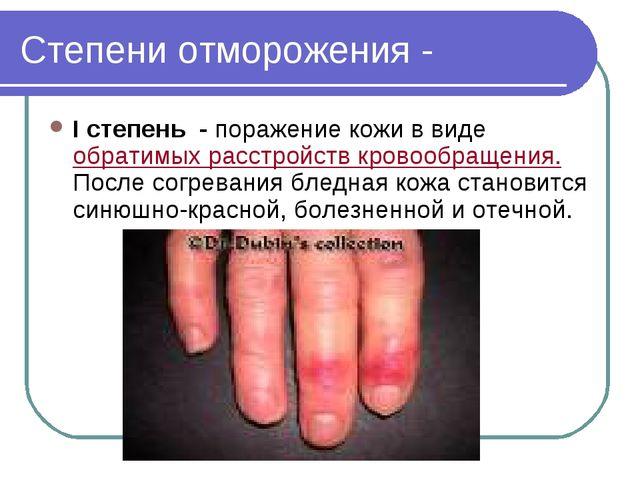 Степени отморожения - I степень - поражение кожи в виде обратимых расстройств...