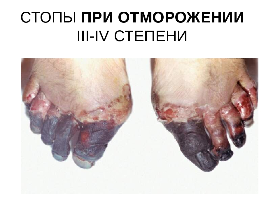 СТОПЫ ПРИ ОТМОРОЖЕНИИ III-IV СТЕПЕНИ