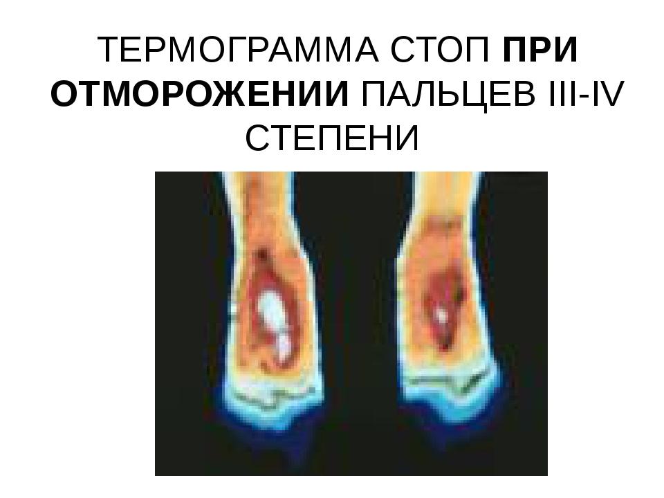 ТЕРМОГРАММА СТОП ПРИ ОТМОРОЖЕНИИ ПАЛЬЦЕВ III-IV СТЕПЕНИ