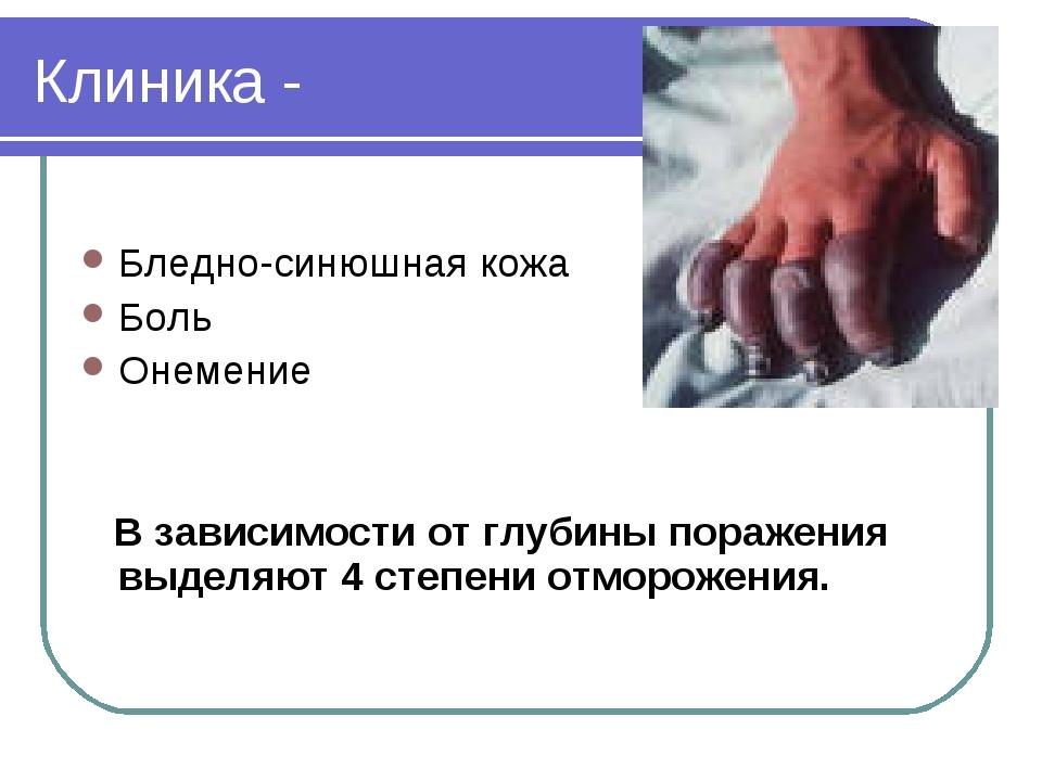 Клиника - Бледно-синюшная кожа Боль Онемение В зависимости от глубины поражен...
