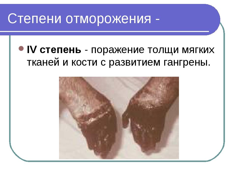 Степени отморожения - IV степень - поражение толщи мягких тканей и кости с ра...