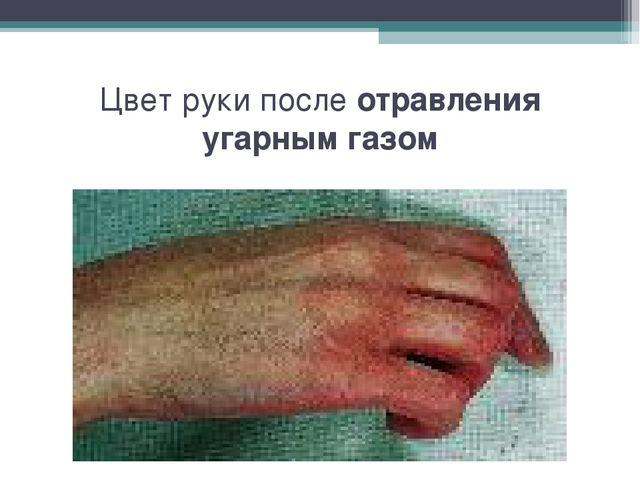 Цвет руки после отравления угарным газом