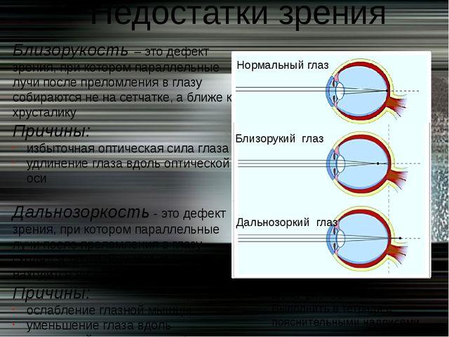 Близорукость – это дефект зрения, при котором параллельные лучи после преломл...