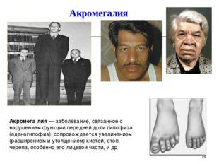 Акромегалия * Акромега́лия — заболевание, связанное с нарушением функции пере
