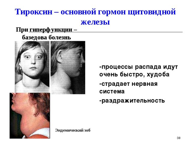 При гиперфункции – базедова болезнь Тироксин – основной гормон щитовидной жел...