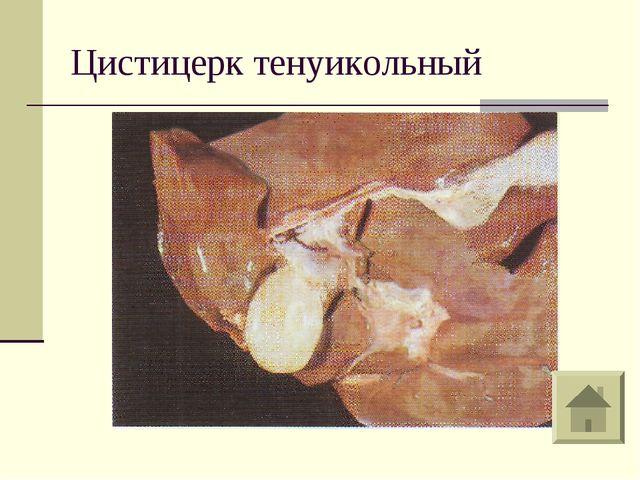 Цистицерк тенуикольный