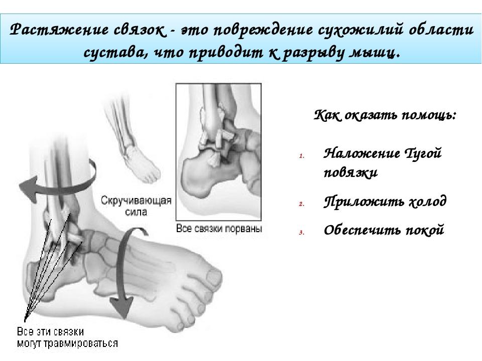 Растяжение связок - это повреждение сухожилий области сустава, что приводит к...