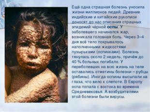 Ещё одна страшная болезнь уносила жизни миллионов людей. Древние индийские и