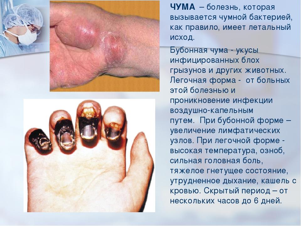 ЧУМА – болезнь, которая вызывается чумной бактерией, как правило, имеет лет...