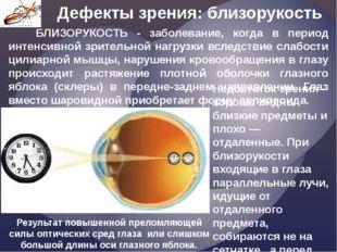 Дефекты зрения: близорукость Недостаток зрения - хорошо видны близкие предмет