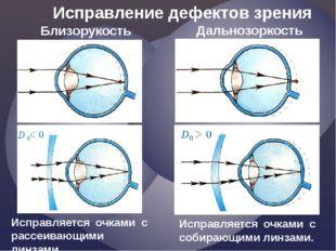 Исправление дефектов зрения Близорукость Дальнозоркость Исправляется очками с