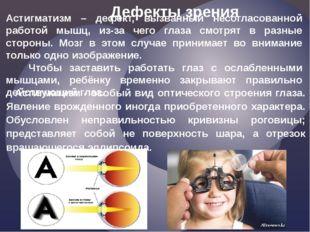 Астигматизм – дефект, вызванный несогласованной работой мышц, из-за чего глаз