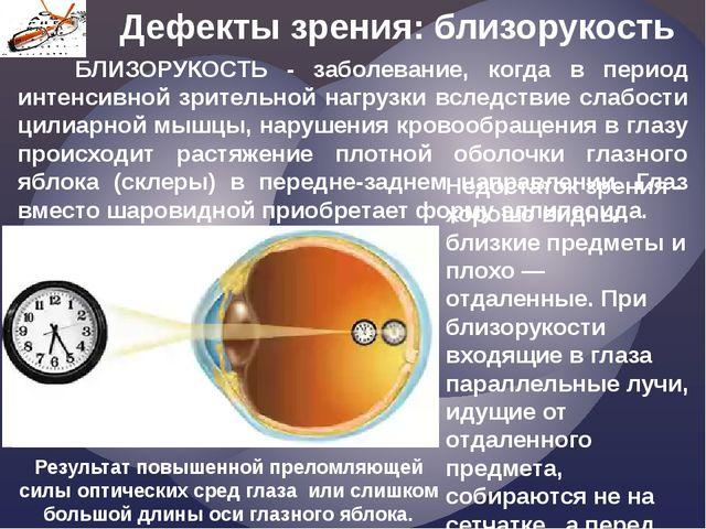 Дефекты зрения: близорукость Недостаток зрения - хорошо видны близкие предмет...